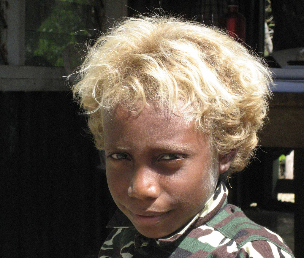 The Beautiful children of Solomon Island in Their Blond Glory